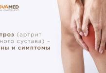 Novamed: лечение артрита