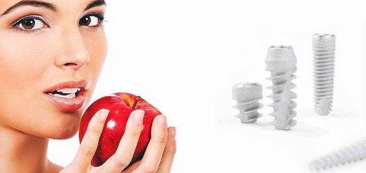 Зубные имплантаты в MasterDent