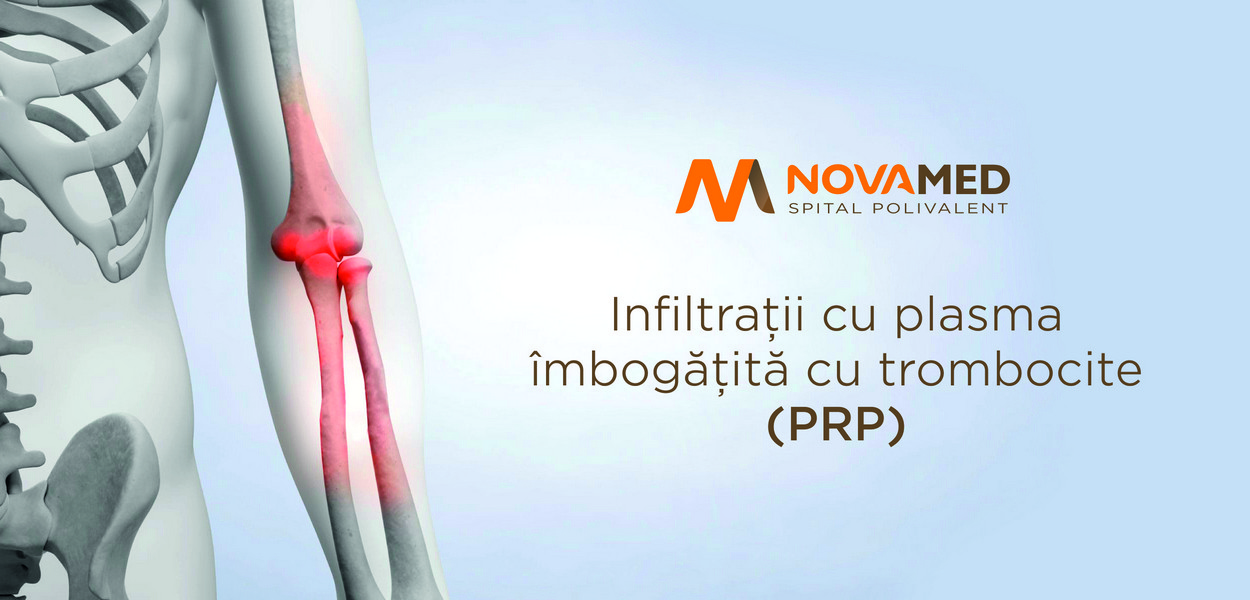 NovaMed: Infiltrații cu plasma îmbogățită cu trombocite (PRP)
