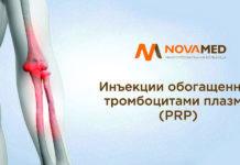 Novamed: инъекции обогащенной тромбоцитами плазмы