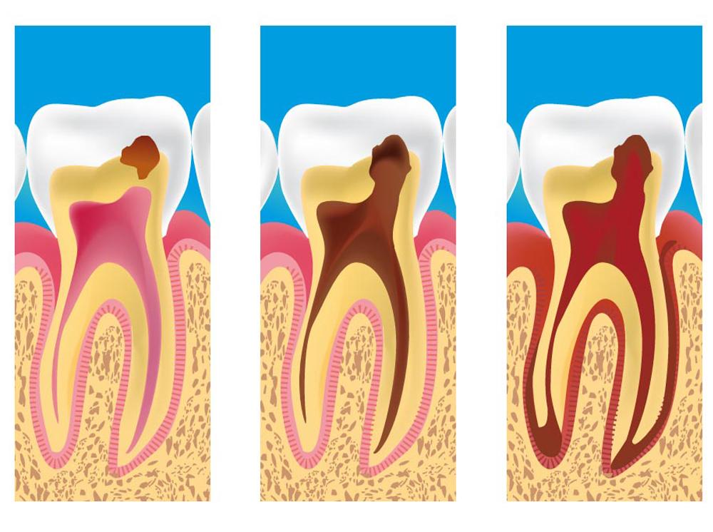 Caracas Dental лечение глубокого кариеса