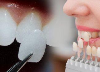Стоматологическая клиника Masterdent зубные фасетки