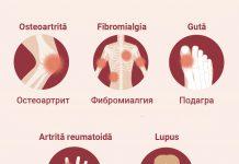 Synevo профиль Антифосфолипидный синдром
