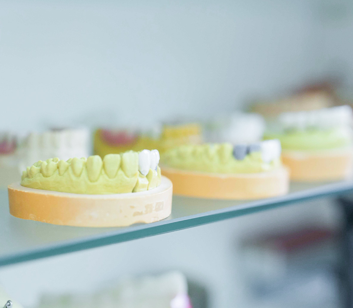 Свойства и плюсы безметалловой керамики