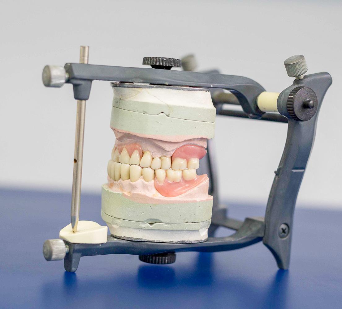 Полная замена зубов через имплантацию в Сaracas Dental