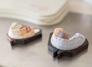 Металлокерамика в Caracas Dental