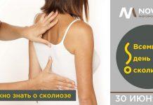 Бурля Сергей, врач ортопед-травматолог: «Что нужно знать о сколиозе»