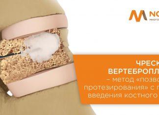 Чрескожная вертебропластика в Novamed