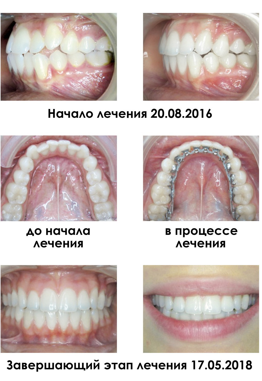 Лингвальные брекеты WIN в клинике Denta Vita