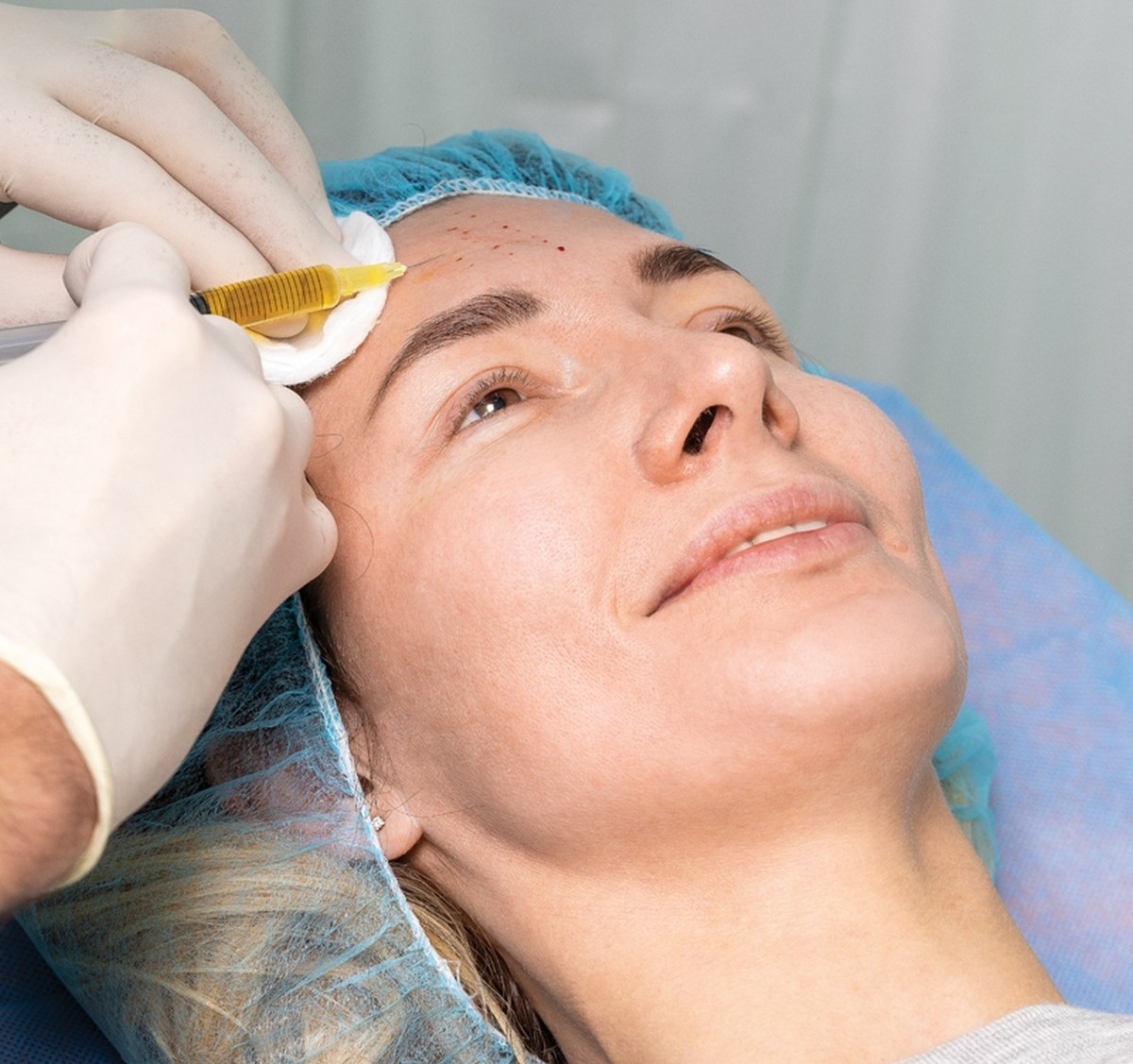Terramed процедура плазмолифтинга