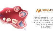 Novamed: Foliculometria