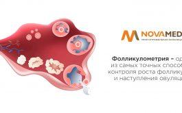Novamed: Фолликулометрия