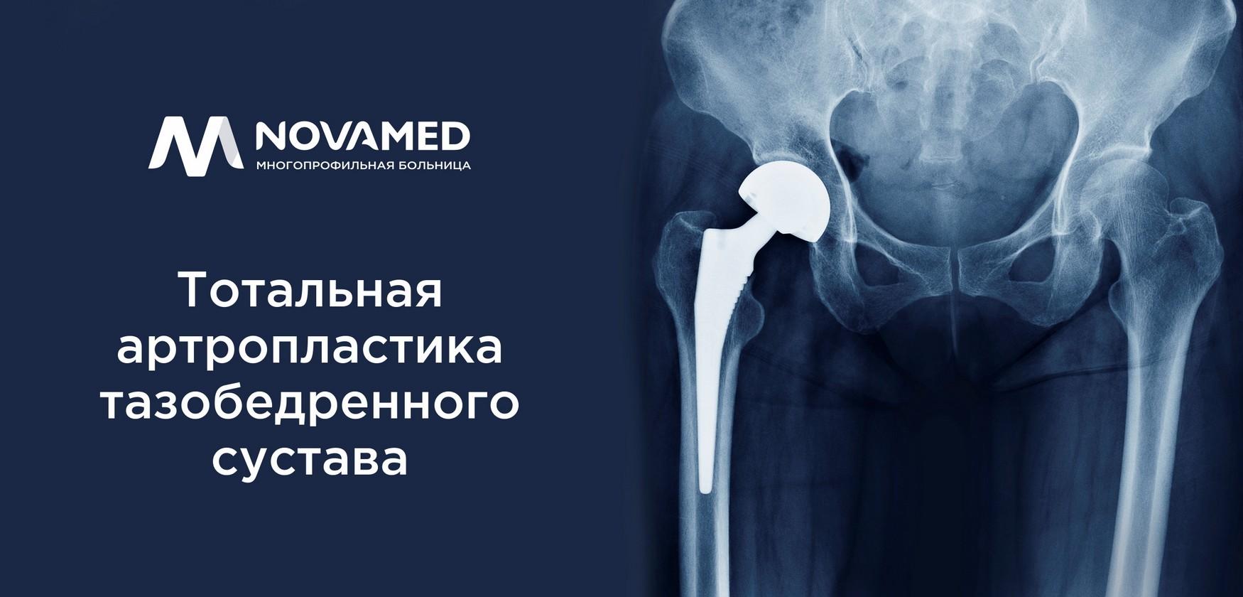 Novamed: о тотальной артропластике тазобедренного сустава