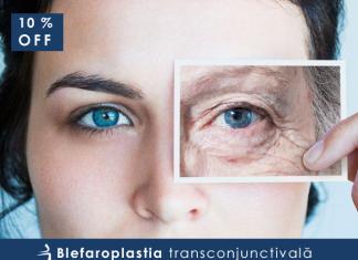 MCI блефаропластика скидки 10%