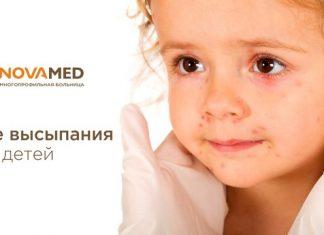 Novamed: кожные выспания у детей