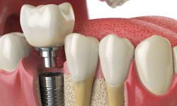 Synevo Moldova аллергия к стоматологическим материалам