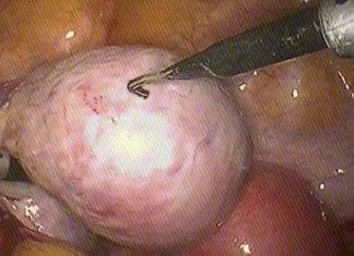 novamed удаление кисты яичника