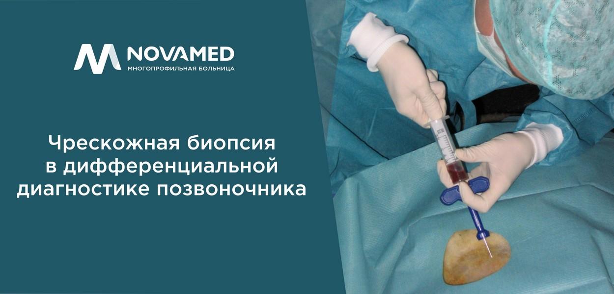 novamed biopsia