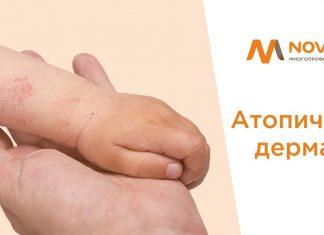 dermatita atopică novamed
