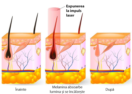 epilare laser medpark
