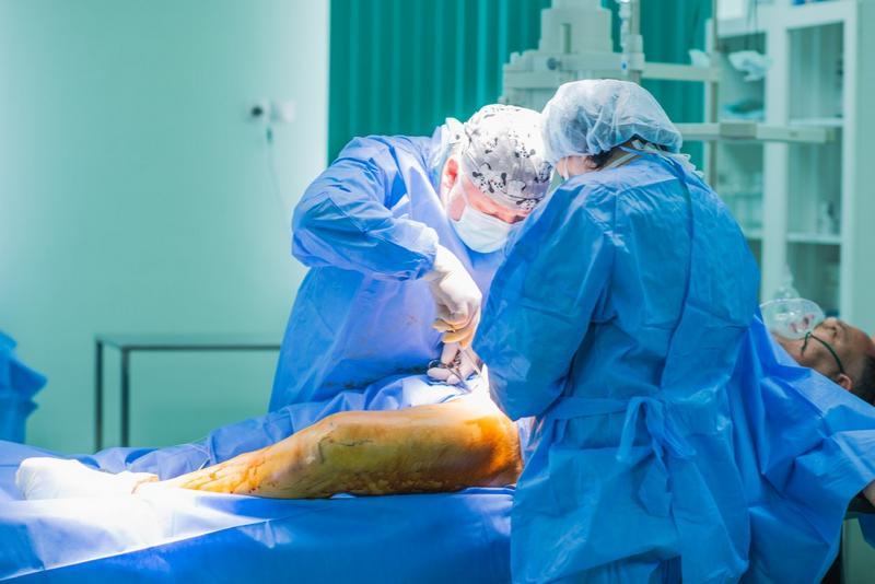 Departamentul de Chirurgie Vasculară, Spitalul Regional Rostov, varice